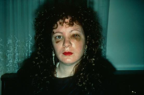 Nan-Goldin-Battered
